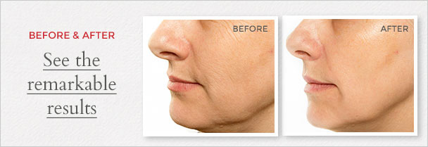 See the remarkable Before After results of Chuda Healing Hydrating Cream